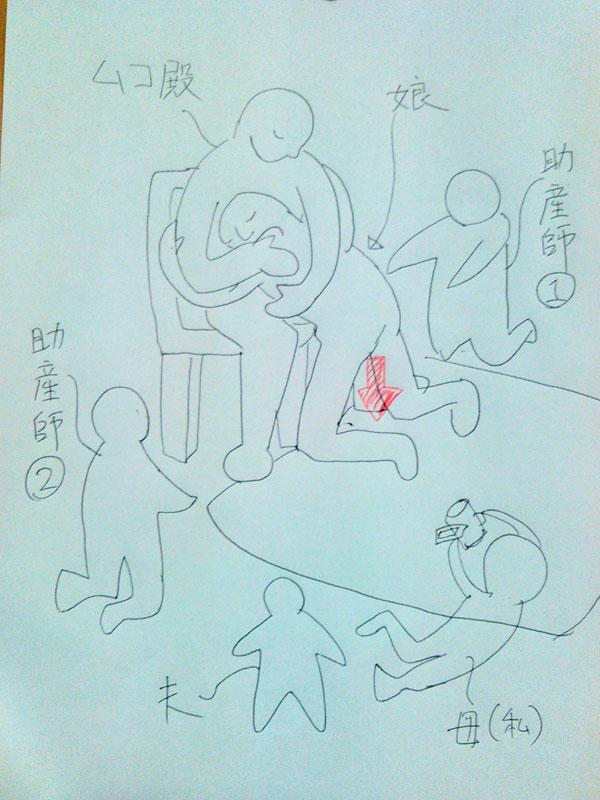 2016.7.13出産の図